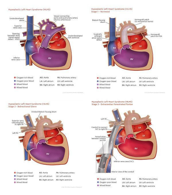 a report on the physical and psychological effects on a child born with hypoplastic left heart syndr